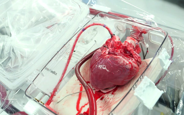 Human Heart For Sale